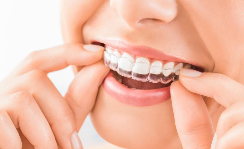 Image of an individual putting on clear braces | Chagrin Family Dental Care in Chagrin Falls, OH