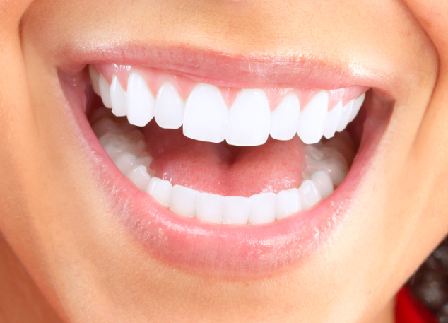 Woman Smiling | Veneers | Chagrin Family Dental Care in Chagrin Falls, OH