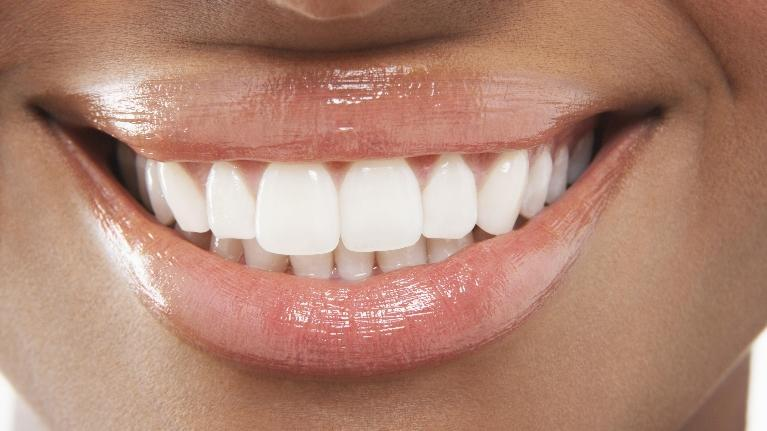 Teeth Whitening | Chagrin Falls
