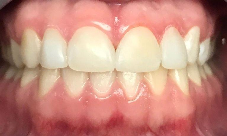 Gaps fixed in front teeth | Chagrin Family Dental Care in Chagrin Falls, OH