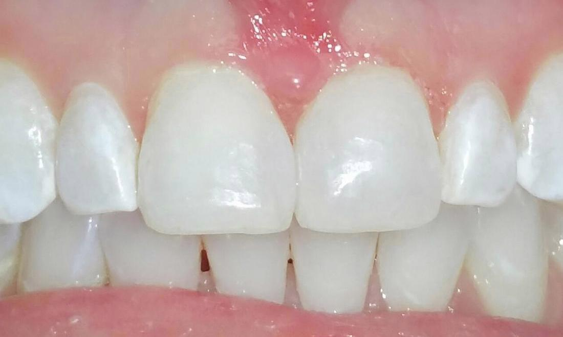 Whitened front teeth | Chagrin Family Dental Care in Chagrin Falls, OH