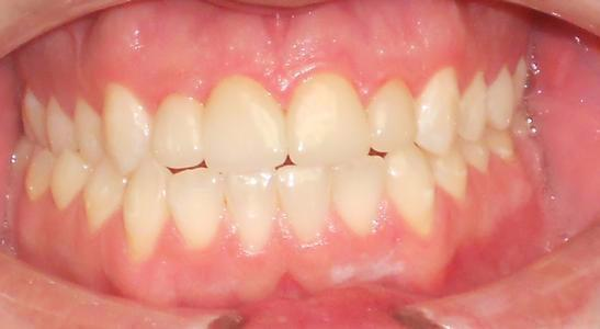 After veneers | Chagrin Family Dental Care in Chagrin Falls, OH