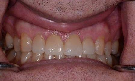 All-Porcelain Crowns