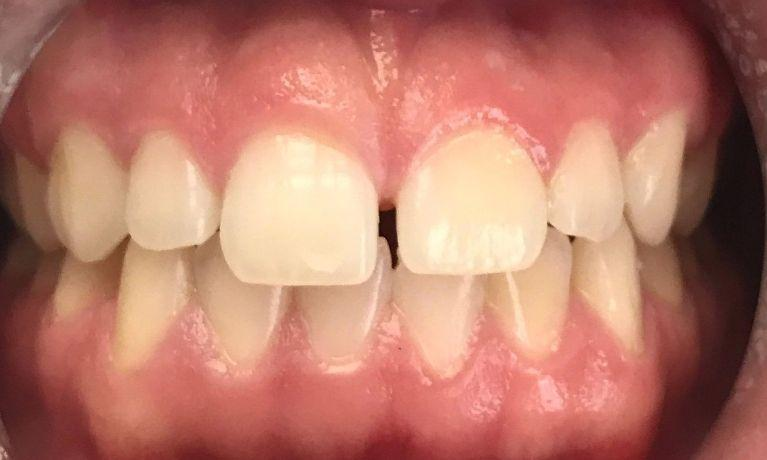 Gaps in front teeth | Chagrin Family Dental Care in Chagrin Falls, OH